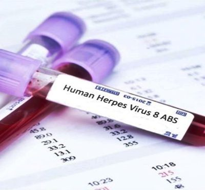 Analítica HERPES I/II - IGG/IGM