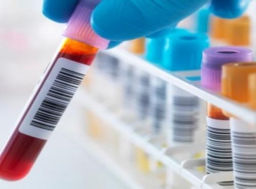 Detectar anticuerpos virus EPSTEIN-BARR